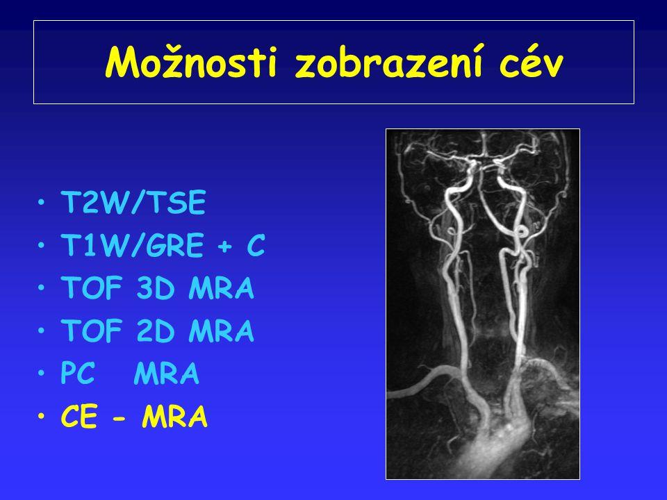 Možnosti zobrazení cév T2W/TSE T1W/GRE + C TOF 3D MRA TOF 2D MRA PC MRA CE - MRA