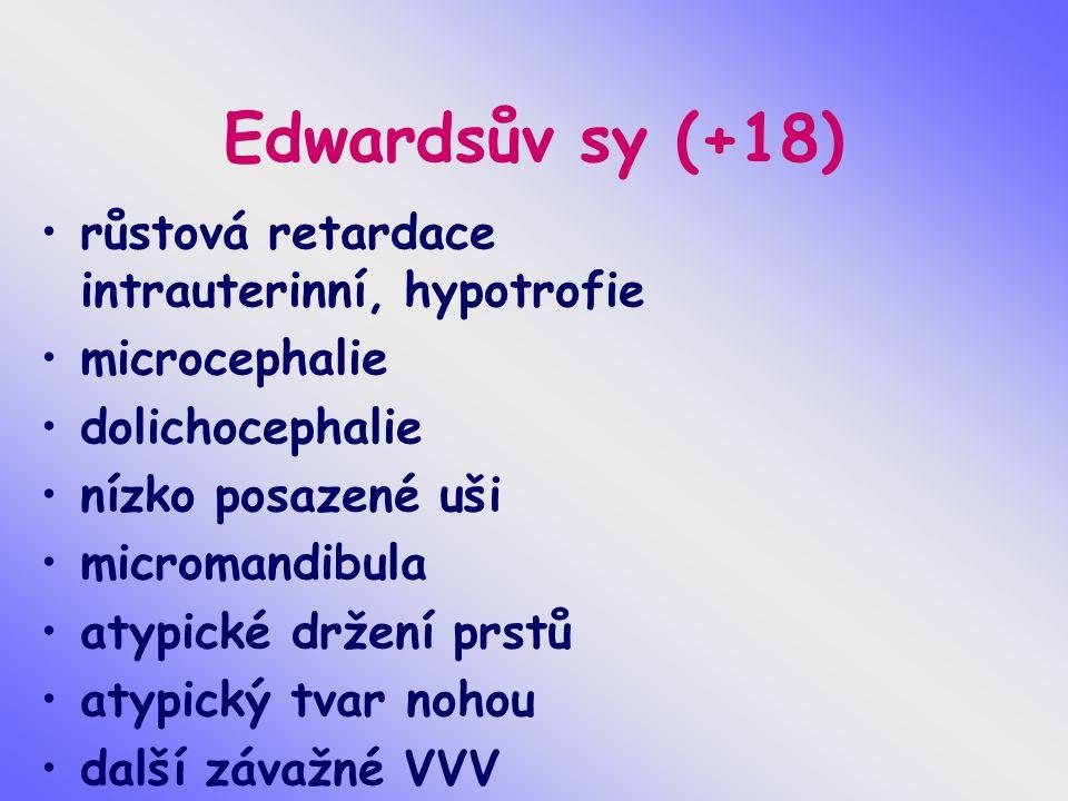 Edwardsův sy (+18) růstová retardace intrauterinní, hypotrofie microcephalie dolichocephalie nízko posazené uši micromandibula atypické držení prstů atypický tvar nohou další závažné VVV
