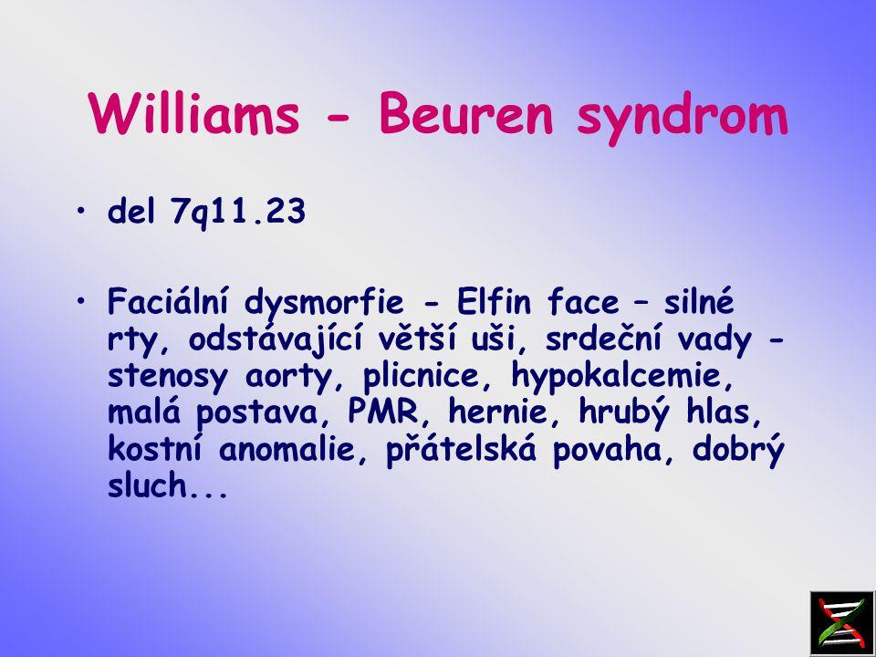 Williams - Beuren syndrom del 7q11.23 Faciální dysmorfie - Elfin face – silné rty, odstávající větší uši, srdeční vady - stenosy aorty, plicnice, hypokalcemie, malá postava, PMR, hernie, hrubý hlas, kostní anomalie, přátelská povaha, dobrý sluch...