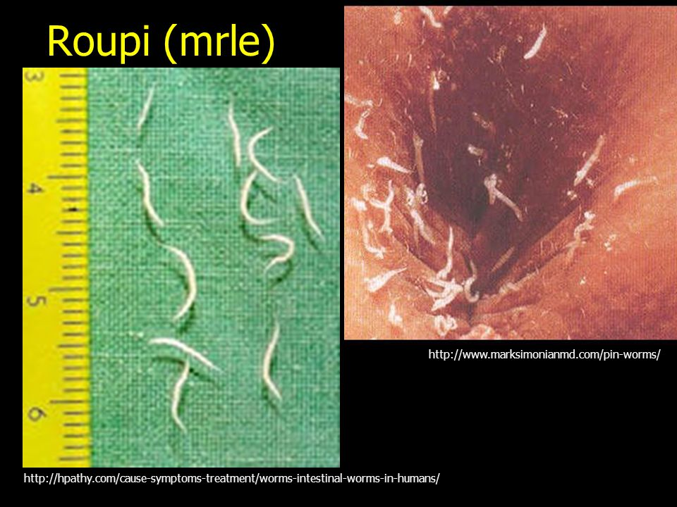 Roupi (mrle) http://www.marksimonianmd.com/pin-worms/ http://hpathy.com/cause-symptoms-treatment/worms-intestinal-worms-in-humans/