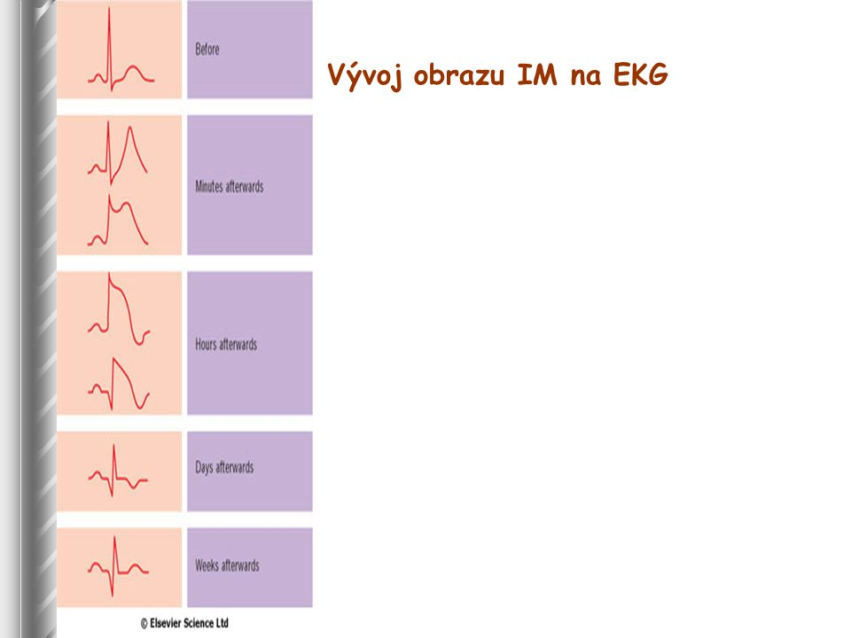Vývoj obrazu IM na EKG