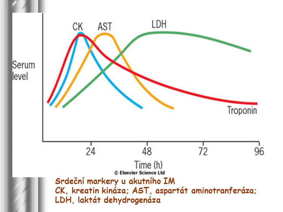 Srdeční markery u akutního IM CK, kreatin kináza; AST, aspartát aminotranferáza; LDH, laktát dehydrogenáza
