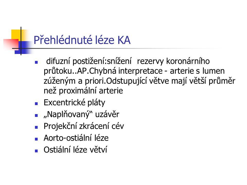 Přehlédnuté léze KA difuzní postižení:snížení rezervy koronárního průtoku..AP.Chybná interpretace - arterie s lumen zúženým a priori.Odstupující větve