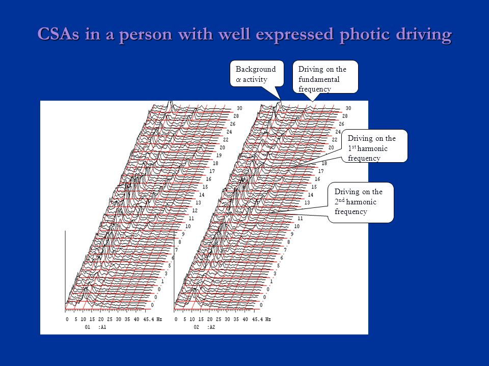 CSAs in a person with well expressed photic driving Background  activity Driving on the fundamental frequency Driving on the 1 st harmonic frequency Driving on the 2 nd harmonic frequency