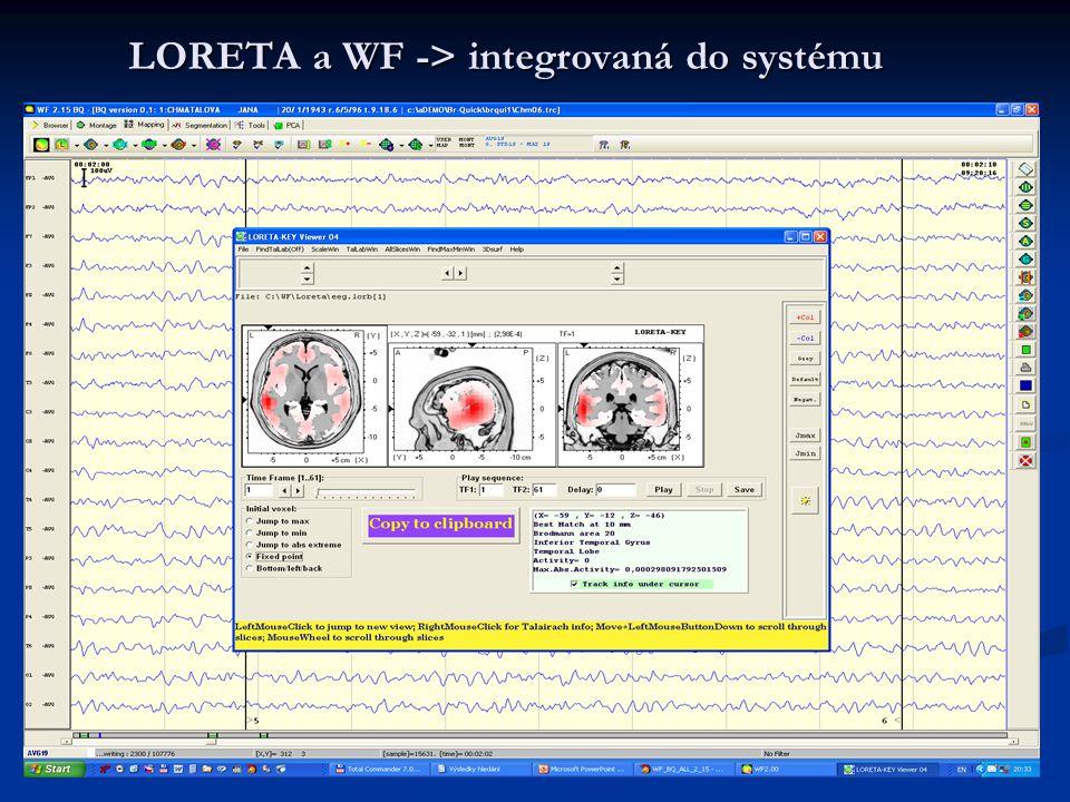 LORETA a WF -> integrovaná do systému