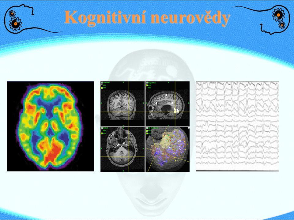 Kognitivní neurovědy