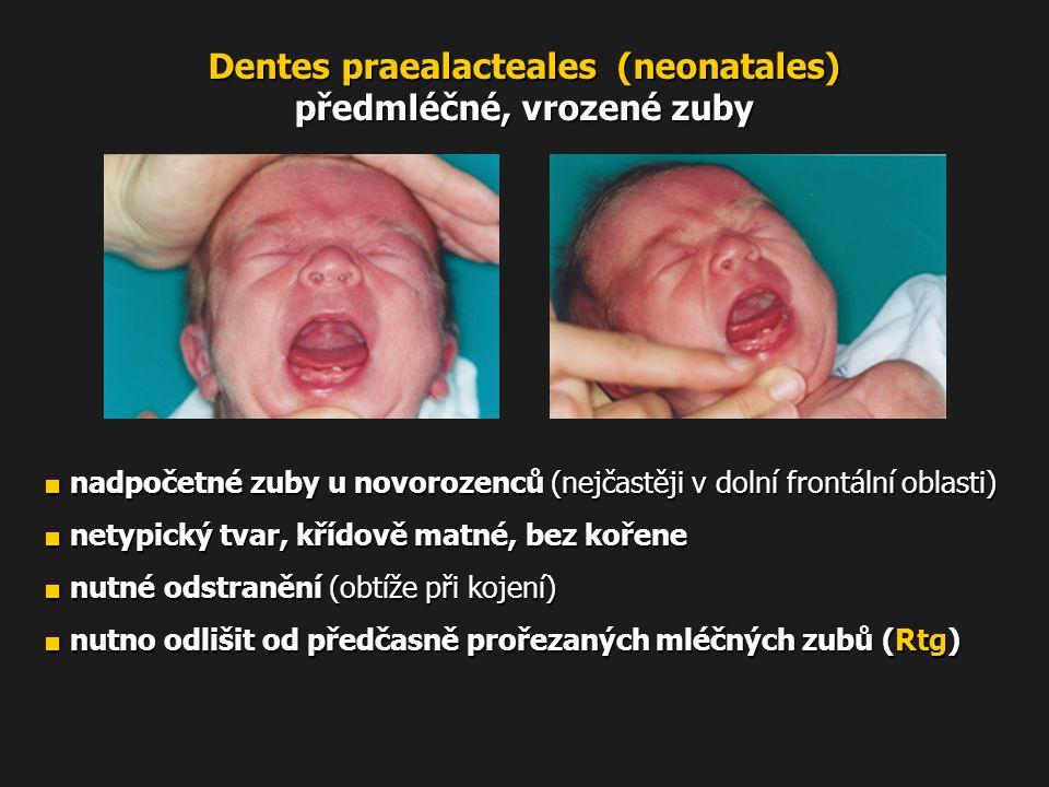 Dentes praealacteales (neonatales) předmléčné, vrozené zuby ■ nadpočetné zuby u novorozenců (nejčastěji v dolní frontální oblasti) ■ netypický tvar, k