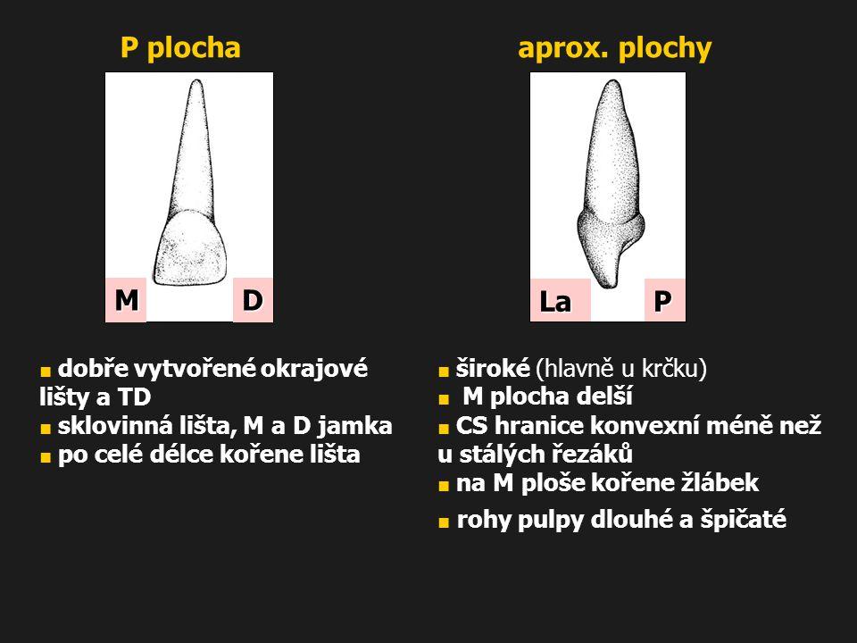 ■ dobře vytvořené okrajové lišty a TD ■ sklovinná lišta, M a D jamka ■ po celé délce kořene lišta MD P plocha ■ široké (hlavně u krčku) ■ M plocha del