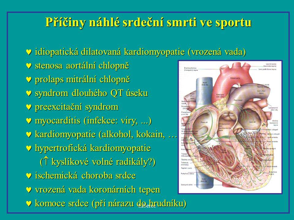 Liberec Příčiny náhlé srdeční smrti ve sportu idiopatická dilatovaná kardiomyopatie (vrozená vada) idiopatická dilatovaná kardiomyopatie (vrozená vada