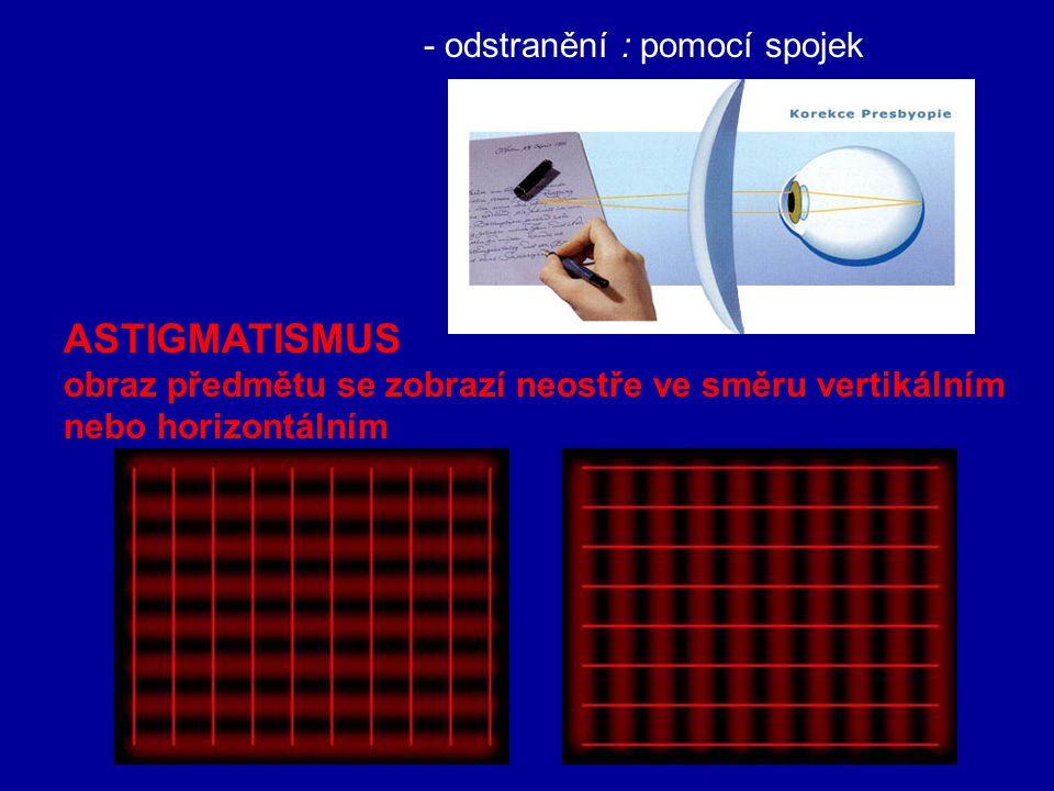 - odstranění : pomocí rozptylek DALEKOZRAKOST (hyperopie, presbyopie) obraz předmětu se zobrazí za sítnicí - blízký bod ve vzdálenosti >25 cm - daleký bod v nekonečném bodě