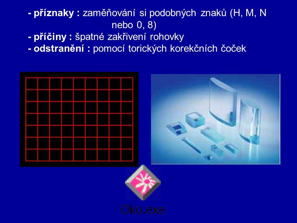 - odstranění : pomocí spojek ASTIGMATISMUS obraz předmětu se zobrazí neostře ve směru vertikálním nebo horizontálním