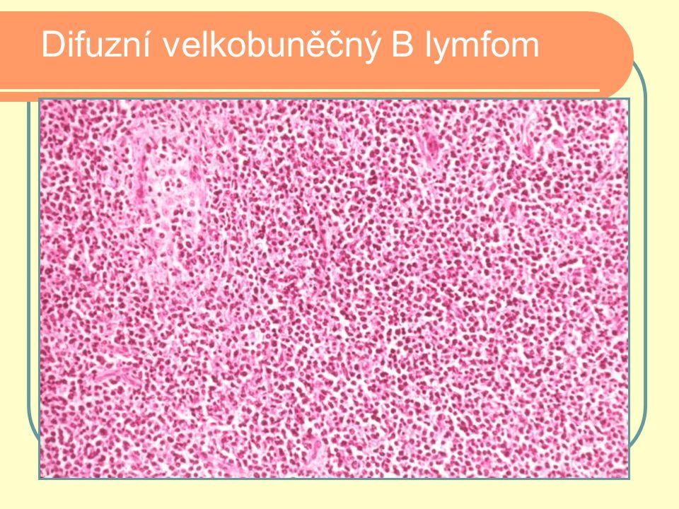 Difuzní velkobuněčný B lymfom