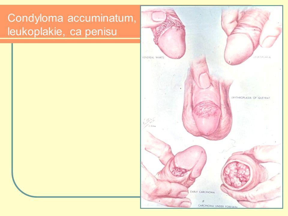 Condyloma accuminatum, leukoplakie, ca penisu