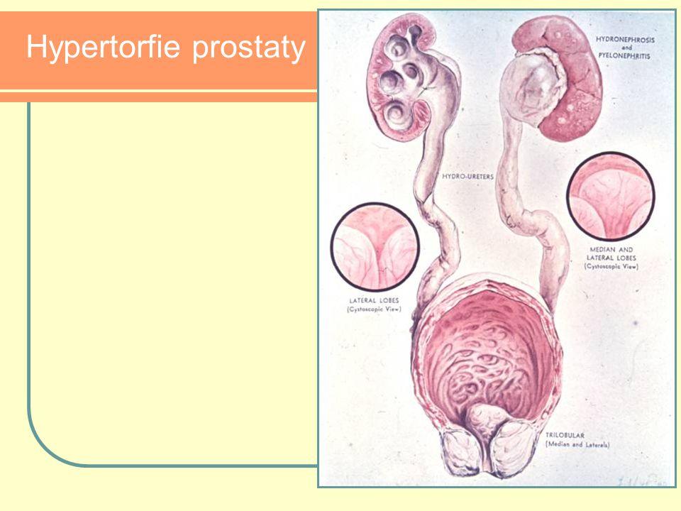 Hypertorfie prostaty