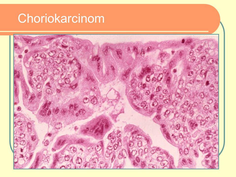 Choriokarcinom