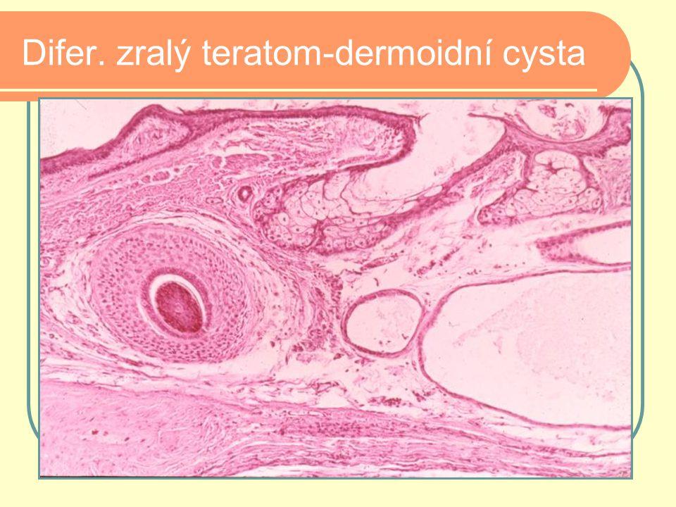 Difer. zralý teratom-dermoidní cysta