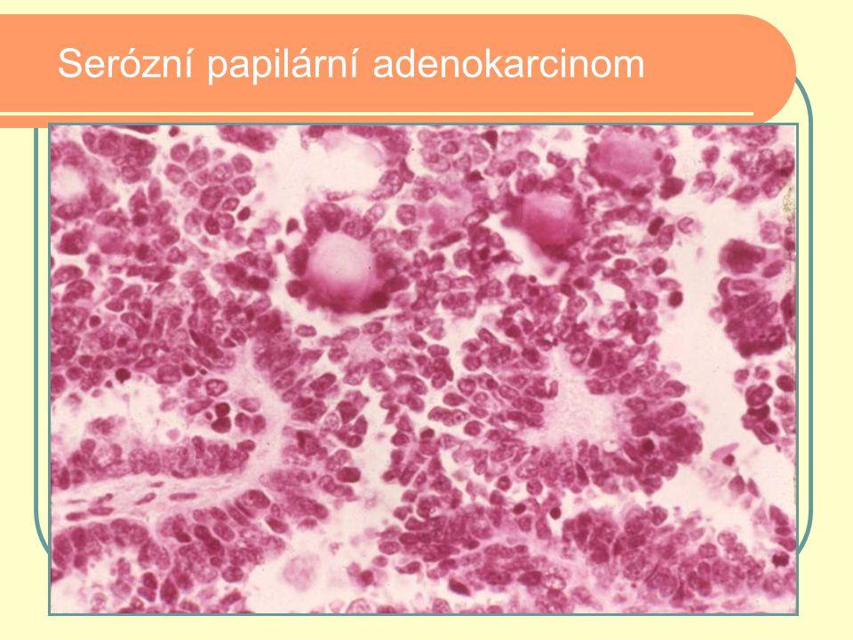 Serózní papilární adenokarcinom