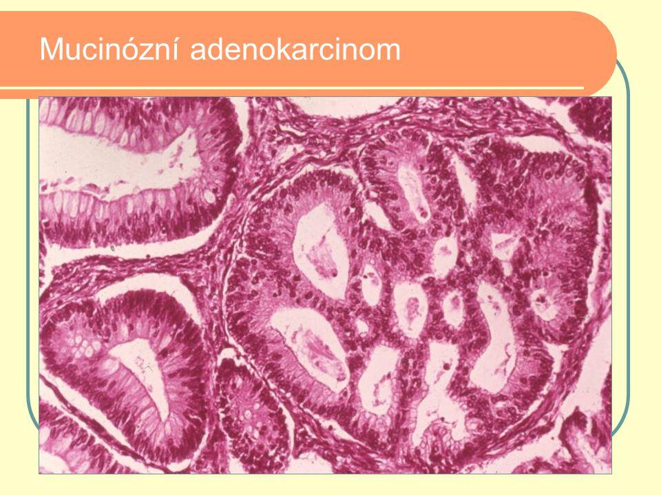 Mucinózní adenokarcinom