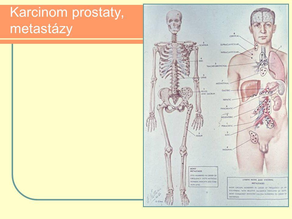 Karcinom prostaty, metastázy