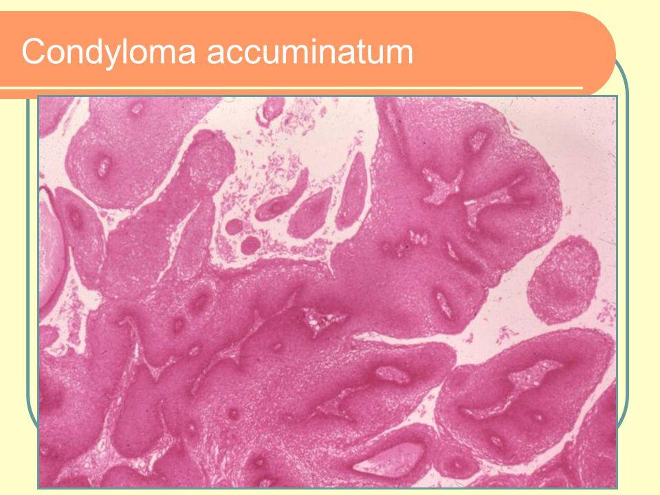 Condyloma accuminatum