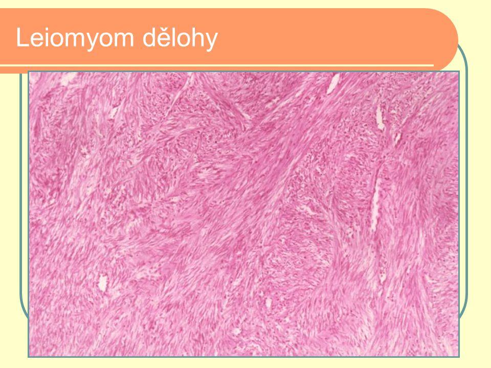 Leiomyom dělohy