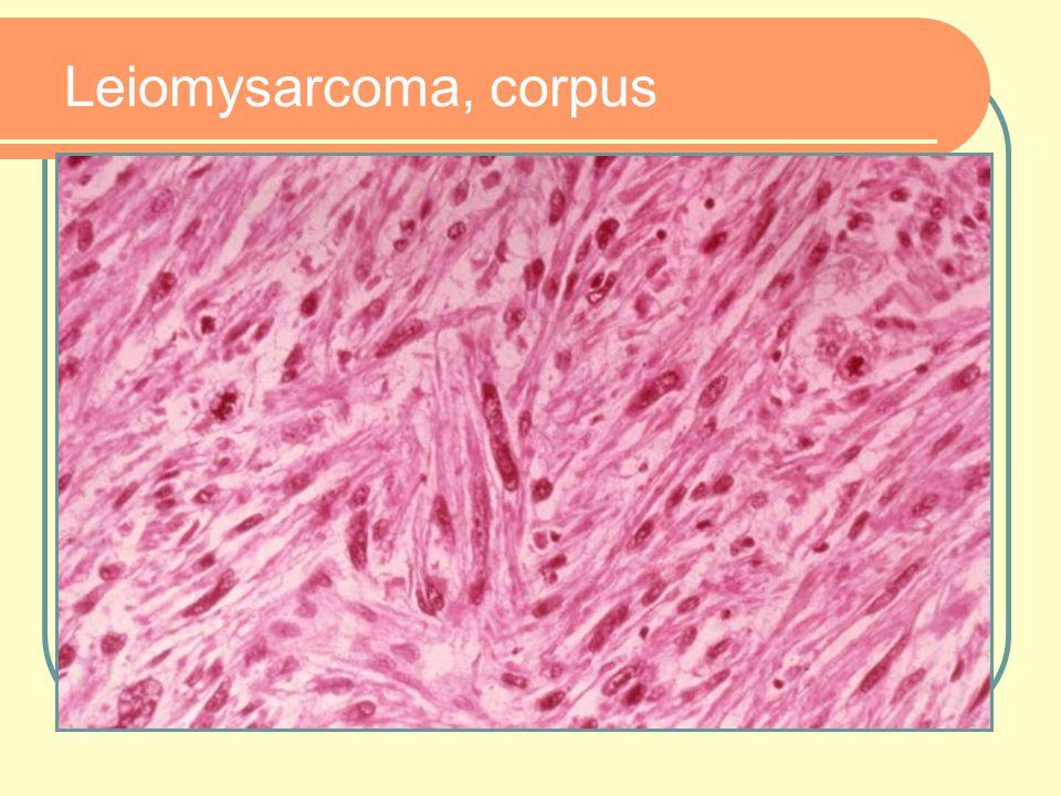 Leiomysarcoma, corpus