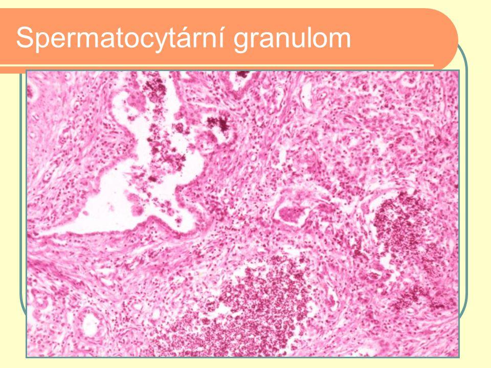 Spermatocytární granulom