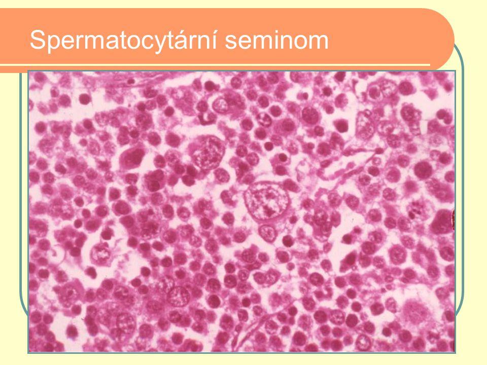 Spermatocytární seminom