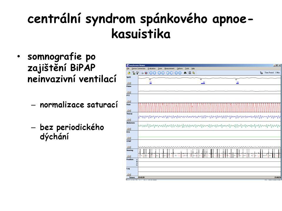 centrální syndrom spánkového apnoe- kasuistika somnografie po zajištění BiPAP neinvazivní ventilací – normalizace saturací – bez periodického dýchání