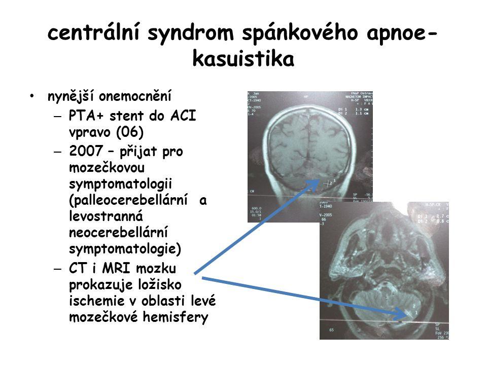 centrální syndrom spánkového apnoe- kasuistika nynější onemocnění – PTA+ stent do ACI vpravo (06) – 2007 – přijat pro mozečkovou symptomatologii (pall