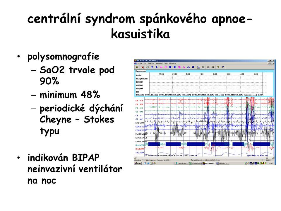 centrální syndrom spánkového apnoe- kasuistika polysomnografie – SaO2 trvale pod 90% – minimum 48% – periodické dýchání Cheyne – Stokes typu indikován