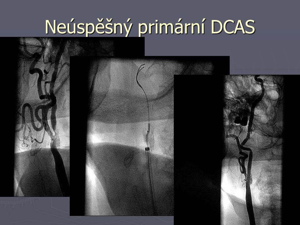 Neúspěšný primární DCAS