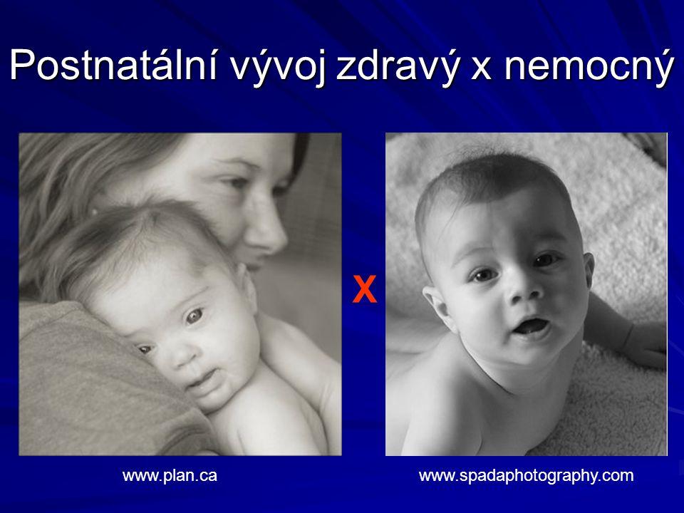 Postnatální vývoj zdravý x nemocný www.spadaphotography.comwww.plan.ca X