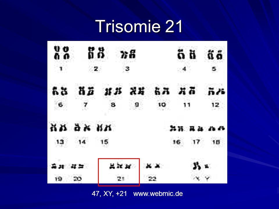 Chromosom 21 www.nature.com