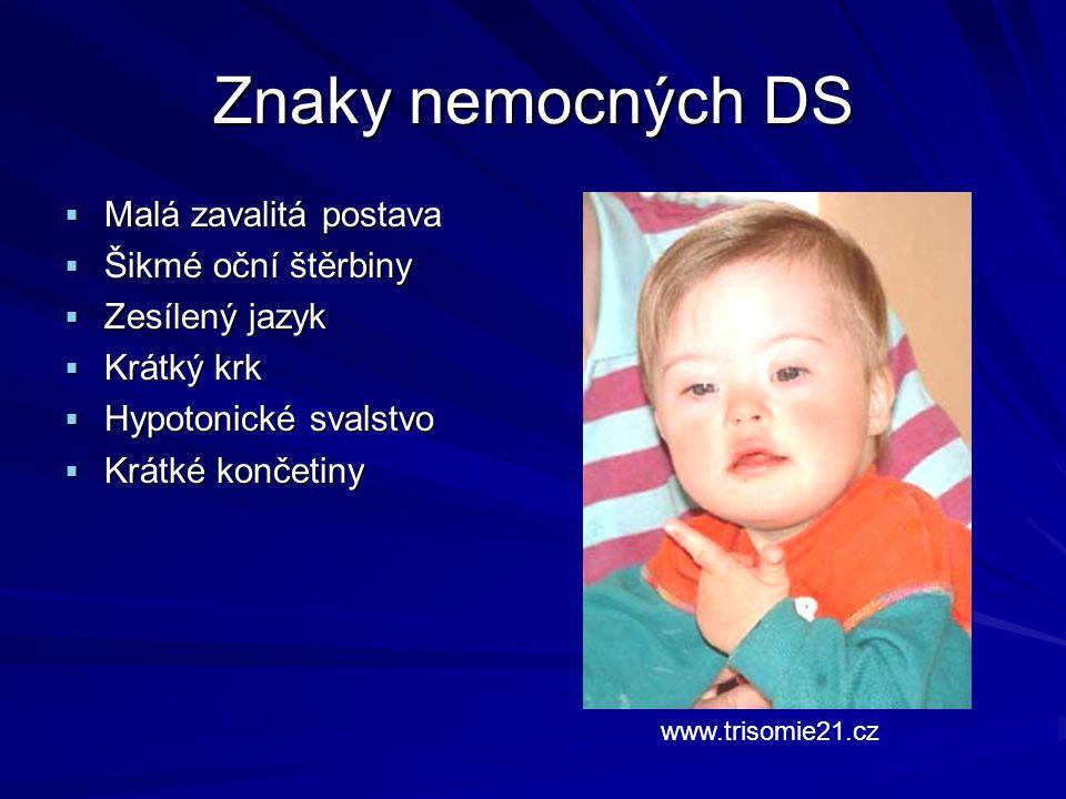 Znaky nemocných DS  Malá zavalitá postava  Šikmé oční štěrbiny  Zesílený jazyk  Krátký krk  Hypotonické svalstvo  Krátké končetiny www.trisomie2