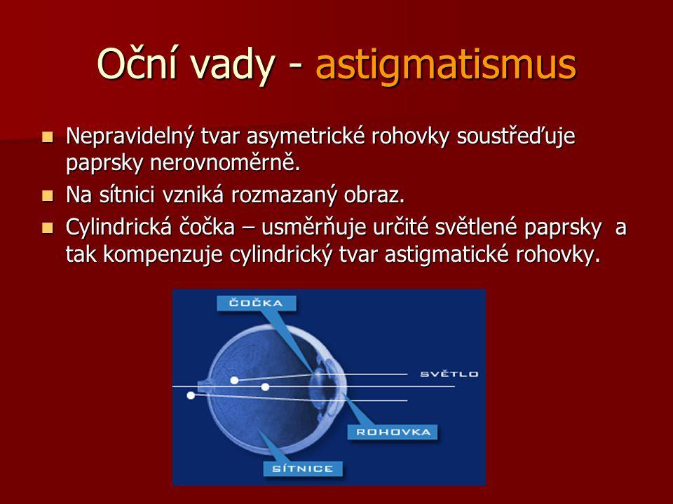 Oční vady - astigmatismus Nepravidelný tvar asymetrické rohovky soustřeďuje paprsky nerovnoměrně. Nepravidelný tvar asymetrické rohovky soustřeďuje pa