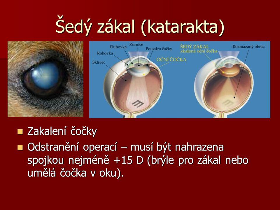 Šedý zákal (katarakta) Zakalení čočky Zakalení čočky Odstranění operací – musí být nahrazena spojkou nejméně +15 D (brýle pro zákal nebo umělá čočka v