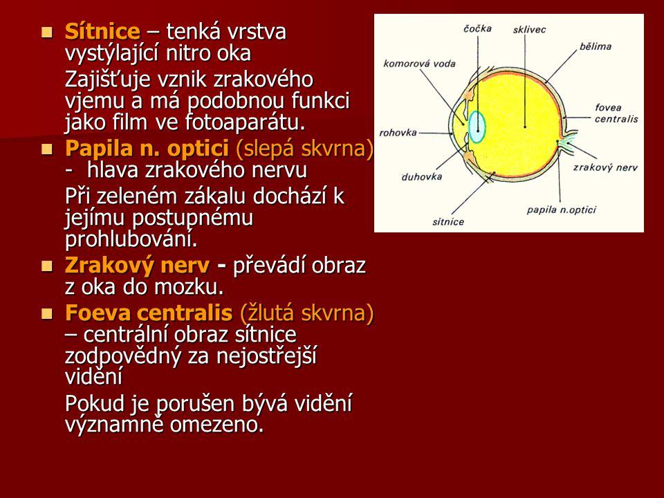 Zelený zákal (glaukom) V konečném stádiu glaukomu - rohovka (přední průhledná stěna oka) šedozeleně zakalená a duhovka za ní ztenčená a světle zelená.