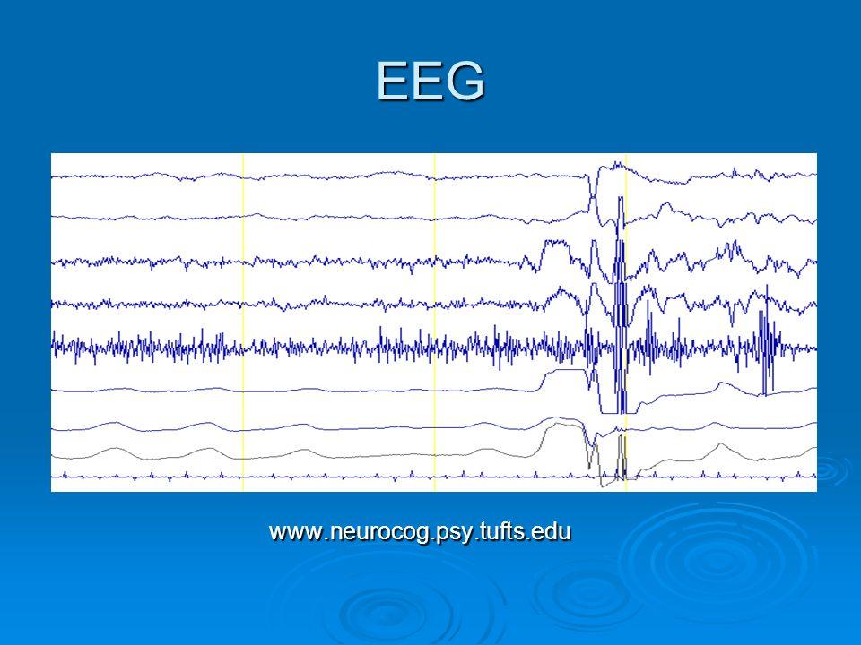 EEG www.neurocog.psy.tufts.edu www.neurocog.psy.tufts.edu