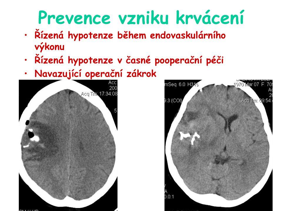 Prevence vzniku krvácení Řízená hypotenze během endovaskulárního výkonu Řízená hypotenze v časné pooperační péči Navazující operační zákrok