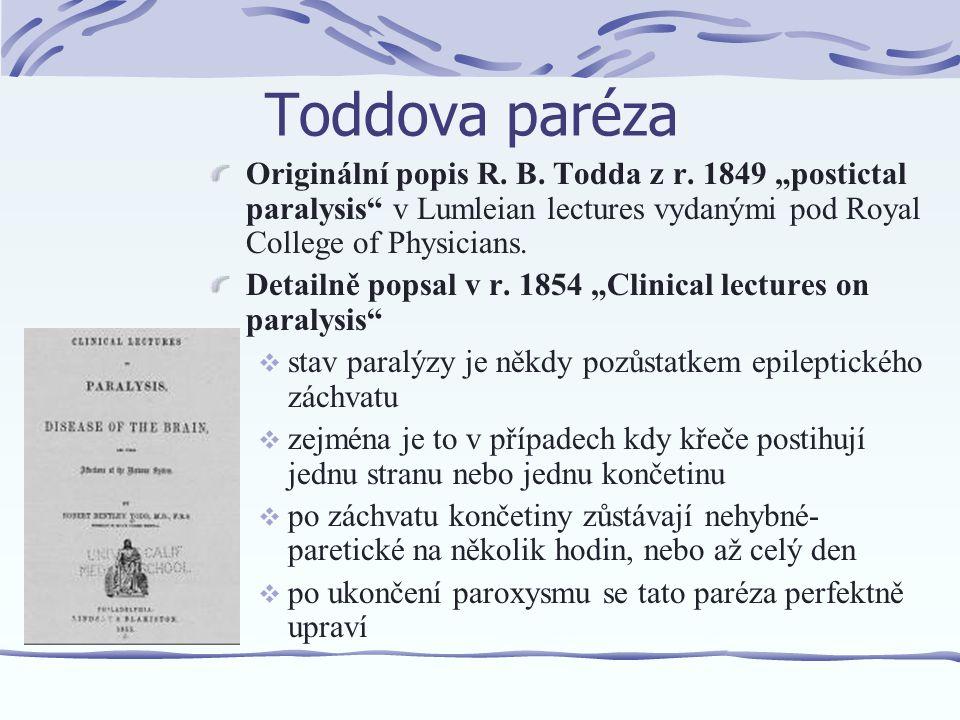 Toddova paréza Originální popis R.B. Todda z r.