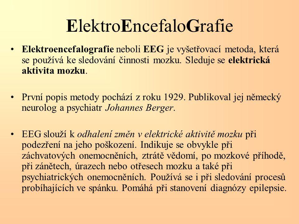 ElektroEncefaloGrafie Elektroencefalografie neboli EEG je vyšetřovací metoda, která se používá ke sledování činnosti mozku. Sleduje se elektrická akti