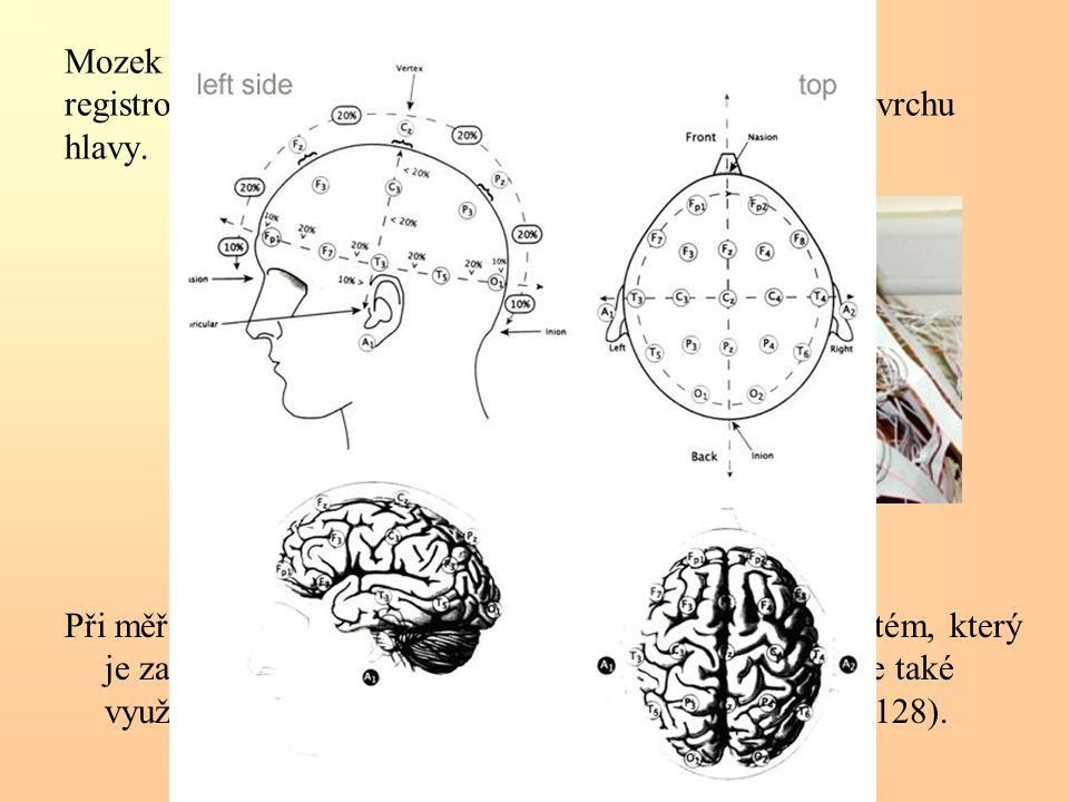 Mozek při své činnosti tvoří elektrické proudy. Ty lze registrovat speciálními elektrodami připevněnými na povrchu hlavy. Při měření EEG se nejčastěji
