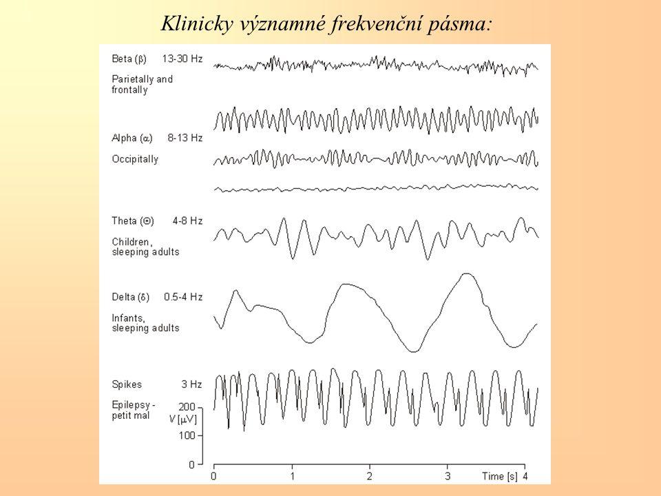 Klinicky významné frekvenční pásma: