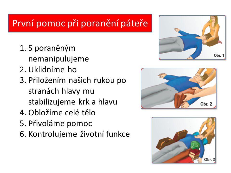 Protišoková opatření 1.Postiženého uložte na podložku a přikryjte ho dekou 2.Zvedněte mu nohy co nejvýše a podložte jej 3.Uvolněte těsný oděv 4.Kontrolujte dýchání 5.Uklidňujte ho 6.Zavolejte odbornou pomoc 7.V případě, že je v bezvědomí a nedýchá, poskytněte mu umělé dýchání a nepřímou masáž srdce