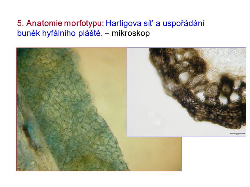 5. Anatomie morfotypu: Hartigova síť a uspořádání buněk hyfálního pláště. – mikroskop