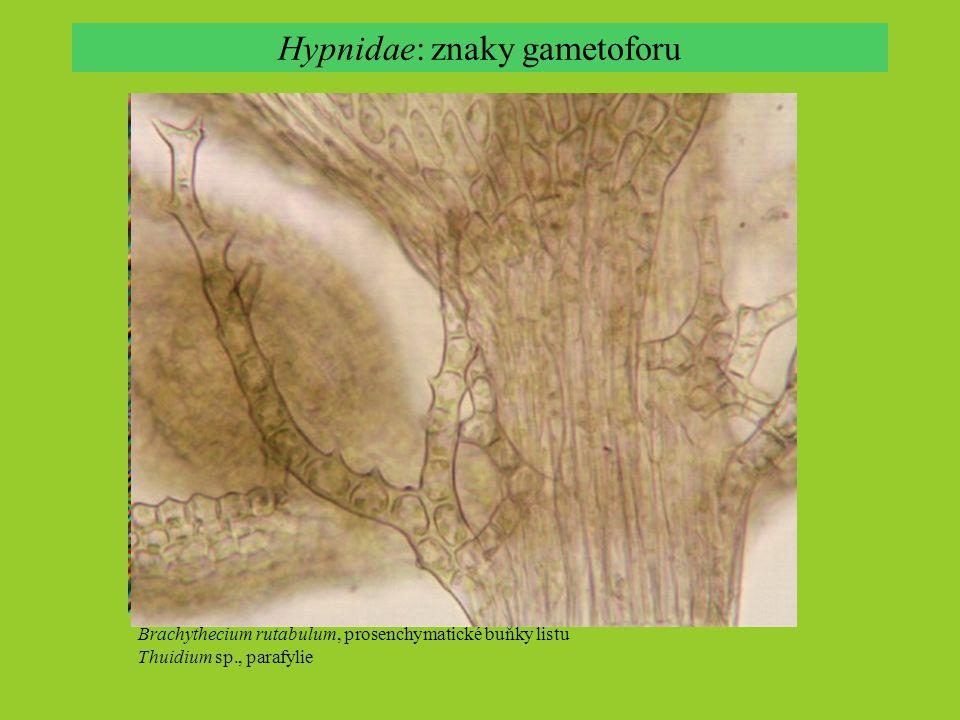 Hypnidae: znaky sporofytu Hypnum tristoviride, dvojitý peristom, alternující zuby Brachythecium rutabulum, dvojitý peristom Daltonia cf.