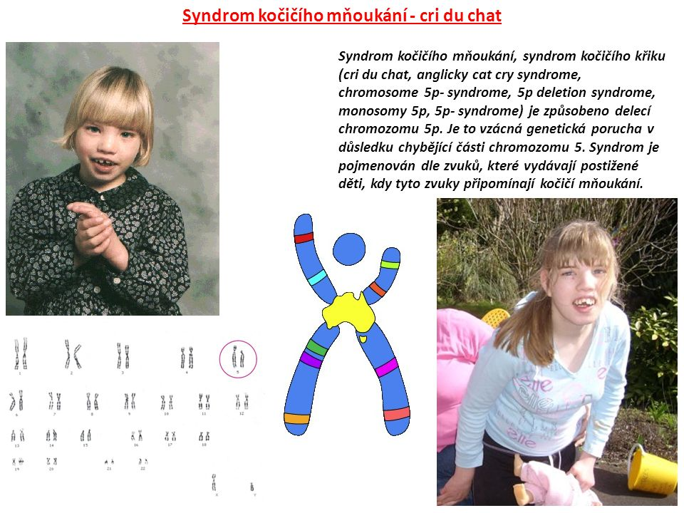 Syndrom kočičího mňoukání, syndrom kočičího křiku (cri du chat, anglicky cat cry syndrome, chromosome 5p- syndrome, 5p deletion syndrome, monosomy 5p, 5p- syndrome) je způsobeno delecí chromozomu 5p.