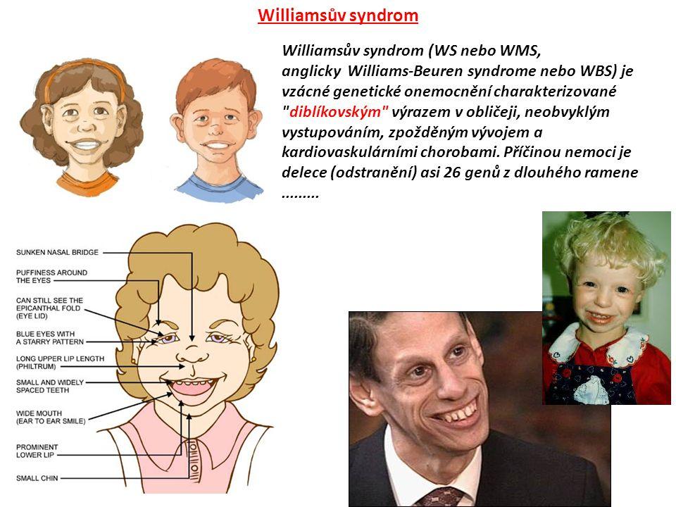 Williamsův syndrom (WS nebo WMS, anglicky Williams-Beuren syndrome nebo WBS) je vzácné genetické onemocnění charakterizované