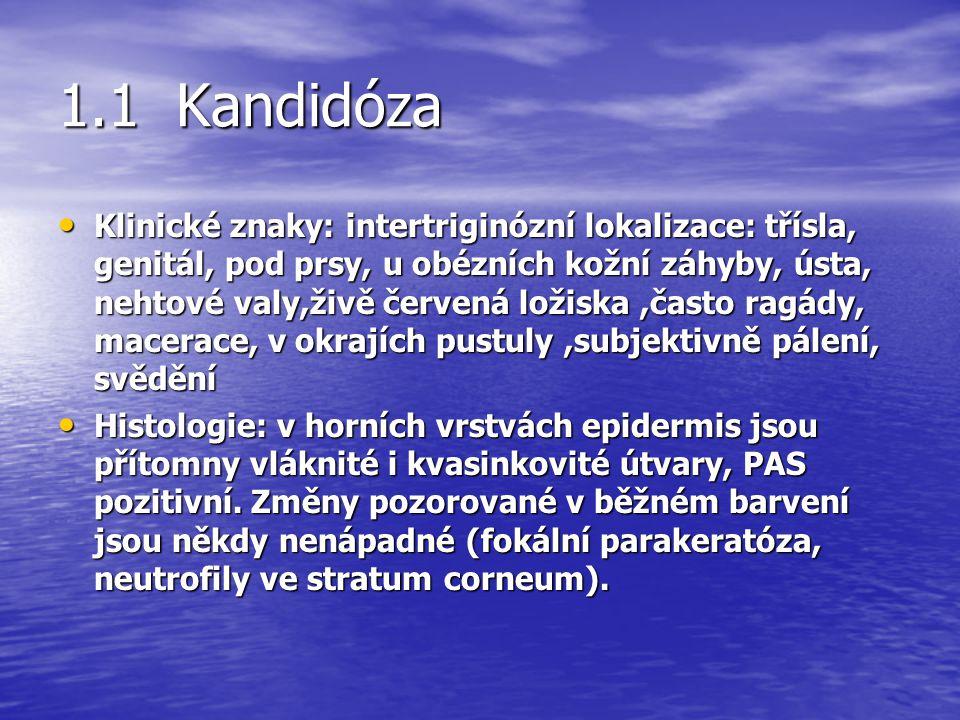 1.1 Kandidóza Klinické znaky: intertriginózní lokalizace: třísla, genitál, pod prsy, u obézních kožní záhyby, ústa, nehtové valy,živě červená ložiska,často ragády, macerace, v okrajích pustuly,subjektivně pálení, svědění Klinické znaky: intertriginózní lokalizace: třísla, genitál, pod prsy, u obézních kožní záhyby, ústa, nehtové valy,živě červená ložiska,často ragády, macerace, v okrajích pustuly,subjektivně pálení, svědění Histologie: v horních vrstvách epidermis jsou přítomny vláknité i kvasinkovité útvary, PAS pozitivní.